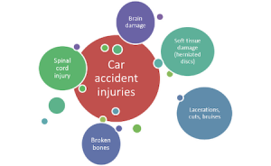 common car accident injuries portland oregon